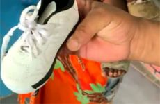 Orthopedic shoes or orthoses are needed for clubfoot treatment.